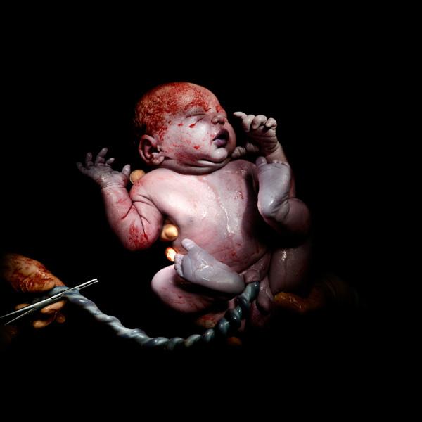 newborn baby born by caesarean christian berthelot