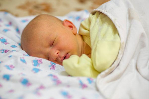 baby with jaundice