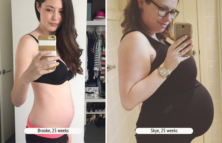Comparison photo of two pregnant women at 25 weeks