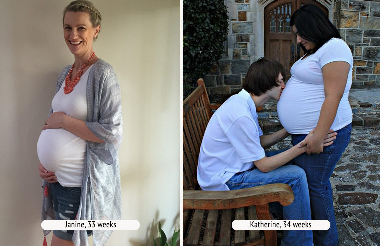 Comparison photo of two pregnant women at 34 weeks
